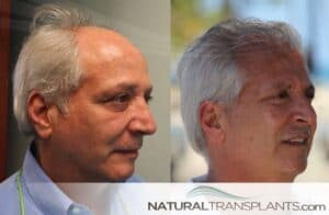 Natural Transplants Hair Restoration Clinic