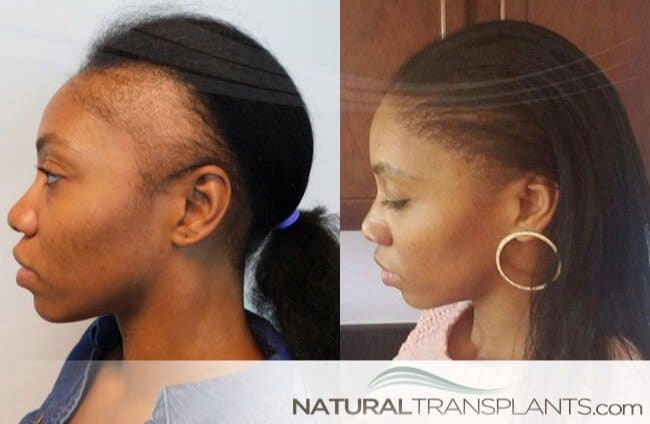 women-hair-loss-treatment_large_0
